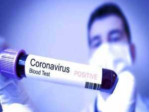 Pemeriksaan Virus Corona